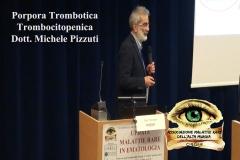 Porpora Trombotica Trombocitopenica Dott. Michele Pizzuti